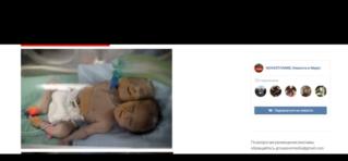 В Израиле родился двухглавый мальчик